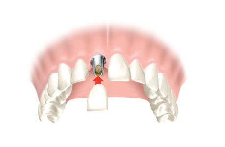nobel-biocare-dentalni-implantat