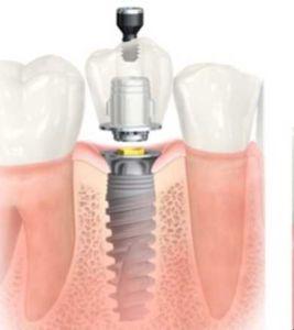 zub-na-implantatu